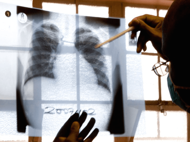 Tuberculosis (Karin Schermbrucker / Associated Press)