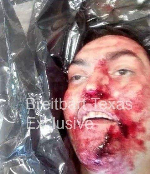 Cartel Leader Body - Photo: Matamoros Zona De Peligro