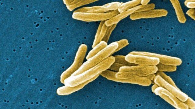 Tuberculosis CDC