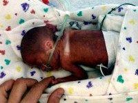Premature baby AP
