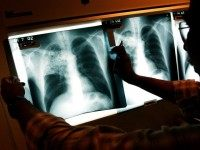 Migrants Bring Multi-Drug Resistant TB to Wisconsin