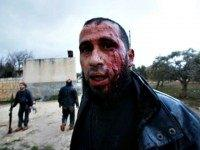 Syria-Homs-rebel-injured AP