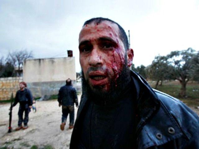 Syria-Homs-rebel-injured AP