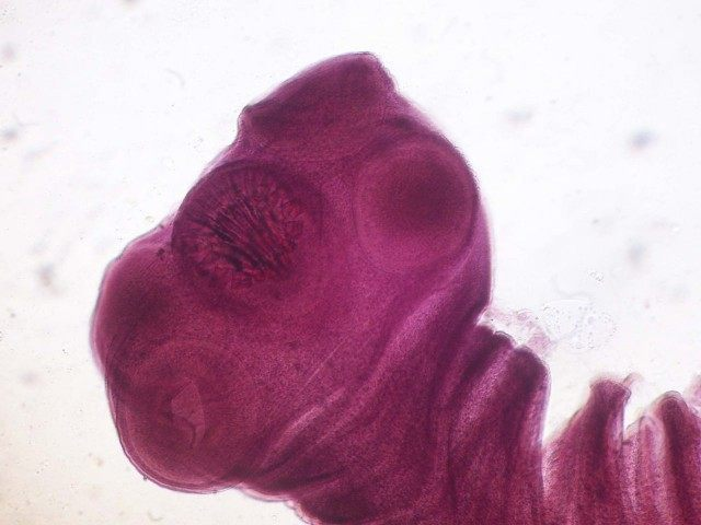 Tapeworm (Wikimedia Commons)