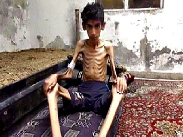 starving_boy_in_Madaya AP