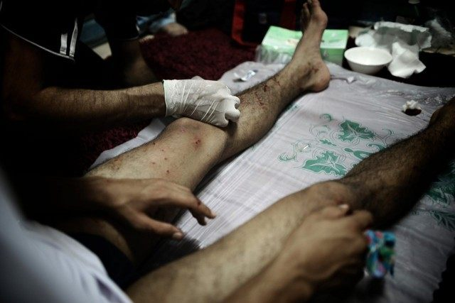 A Bahraini Shiite medic treats a wounded protester during clashes with riot police following a demonstration in solidarity with jailed Bahraini opposition activists in Malekia, on the outskirts of the capital Manama on September 4, 2012 after a Bahraini court upheld jail terms against 13 leading opposition figures