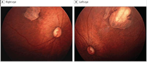 The right eye has a superotemporal perimacular chorioretinal scar with perilesional pigmentary mottling (A), and the left eye has similar findings (B).
