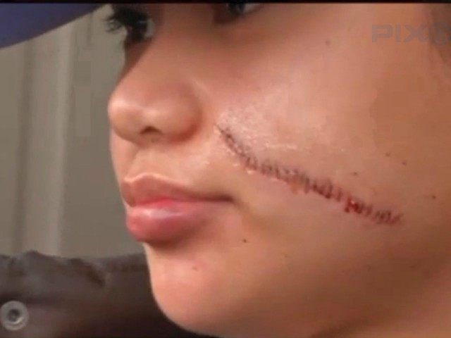 paula-delos-santos-face-slashing-victim-in-nyc-pix11-screenshot