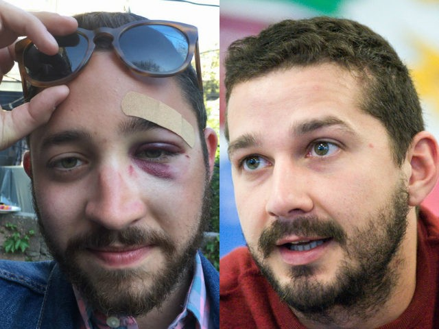 NYC Man Knocked Unconscious for Looking 'Like Shia LaBeouf'