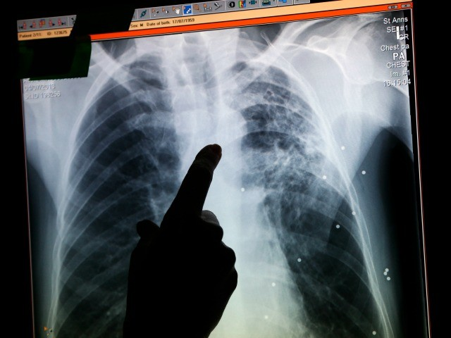 Outbreak of 17 Cases of Multi-Drug-Resistant TB Reported ...
