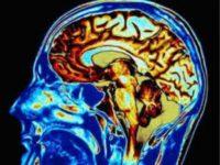 Brain CTE