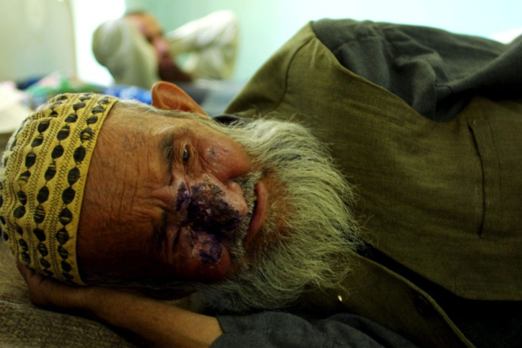 405087 03: A Man Suffering From Cutaneous Leishmaniasis, A Disfiguring And Disabling Skin Disease, Lies In A Hospital Bed After Receiving An Injection May 8, 2002 In Kabul, Afghanistan. Leishmaniasis Is Caused By A Parasite Transmitted By The Sandfly. The Disease Has Affected Approximately 100,000 People In The Capital City This Year. The Disease, Which Begins With A Lesion On The Area That Has Been Bitten, Is Linked To Poor Social Conditions, Especially Lack Of Hygiene And Poor Removal Of Waste Material. Some Estimates Say That Fifty Percent Of Afghans Suffer From The Disease. (Photo By Natalie Behring-Chisholm/Getty Images)