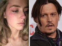 Report: Cops Say No Evidence of Injuries to Amber Heard on Night Actress Says Johnny Depp Assaulted Her