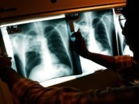Seattle Hospital Worker With Active TB May Have Exposed 140 Cancer Patients to the Disease