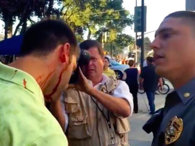 Trump supporter injured (Screenshot / Timcast / YouTube)