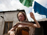TO GO WITH AFP STORY BY OTTO BAKANO Fatuma Sultan (R), a Tanzanian albino and the sister of albino member of Tanzania's Albino United football club Fikiri Sultan, hangs clothes to dry in front of her home in Dar es Salaam on November 3, 2010. Albinism is a genetically inherited …