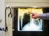 Doctor Frank Kunitz showing a case of Tuberculosis on an x-ray photograph at the Tuberculosis centre in Berlin-Lichtenberg, Germany, 23 February 2016. During reception at refugee homes in Germany, refugees are supposed to be tested for Tuberculosis, as regulated by the Infection Protection Law. Photo by: Gregor Fischer/picture-alliance/dpa/AP Images