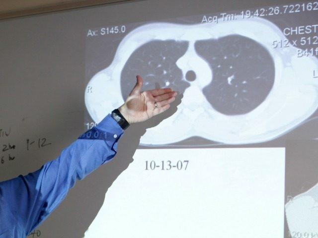 July 20, 2009 photo shows Dr. David Ashkin examining an x-ray belonging to patient Oswaldo Juarez at A.G. Holley State Hospital in Lantana, Fla.