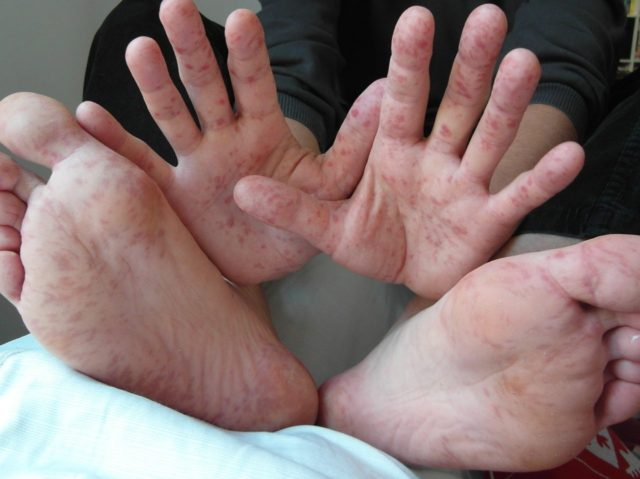 Hand Foot and Mouth disease (Wikimedia Commons)