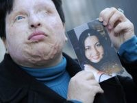 Iranian Ameneh Bahrami poses on March 5, 2009 in Barcelona holding a photograph of herself before she was blinded by a man who threw acid in her face. In 2008 an Iranian court ruled that the man -- identified only as Majid -- a spurned suitor who poured a bucket …