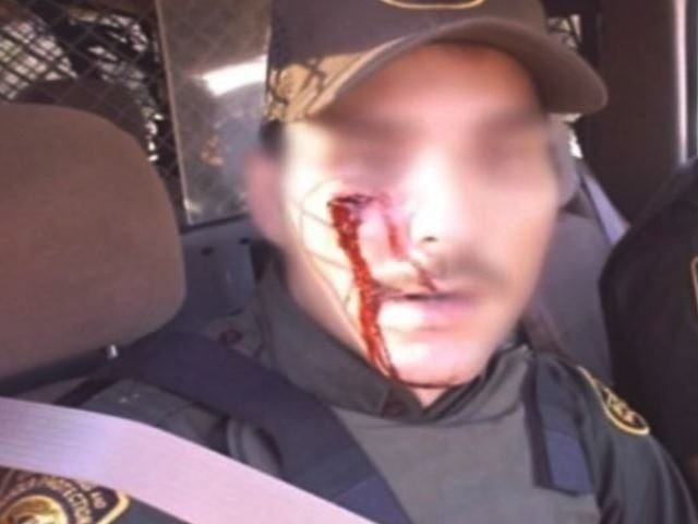 File Photo showing injuries to Border Patrol agent from rock throwers. (File Photo: Homeland Security Today)