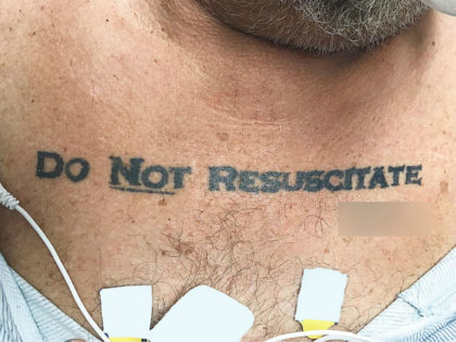 Do Not Resuscitate tattoo