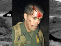 Three More Border Patrol Agents Assaulted in South Texas