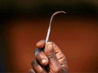 Another Female Genital Mutilation Case Fails, Zero Convictions in 33 Years