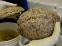 Around the age of 13, the human brain region that hosts memory and learning appears to stop producing nerve cells, according to a new study.