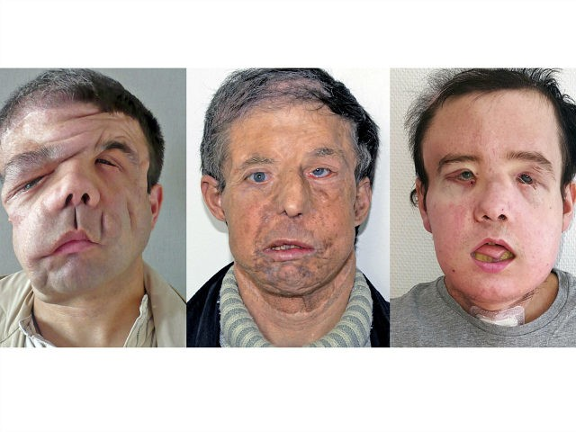 Dr. Laurent Lantieri of the Georges-Pompidou Hospital has successfully completed a second face transplant on Jerome Hamon.