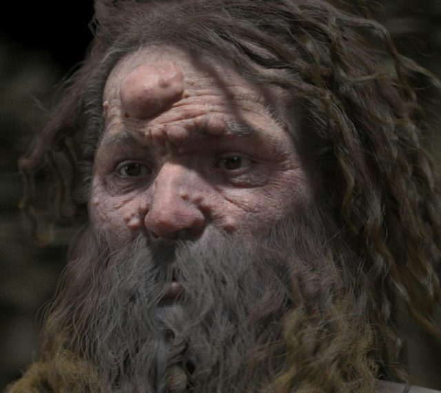 """Cro-Magnon man's skull """"has a lesion on the forehead which corresponds to the presence of a neurofibroma (a benign nerve sheath tumor),"""" which has eroded the bone, anthropologist Philippe Charlier says"""