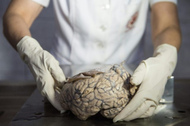 """A human brain on display at the """"Museum of Neuropathology"""" in Lima, Peru"""