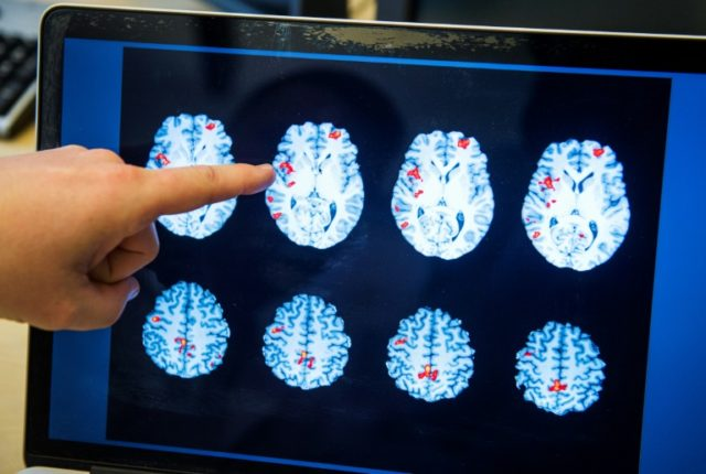 Previous studies on a link between brain injury and dementia yielded contradictory results