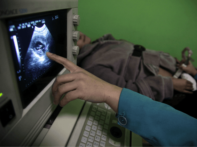"""In this photo taken Monday, Dec. 13, 2010, a nurse points out the image of a three-month-old fetus during a sonogram scan for """"Nancy"""" Yin at a clinic run by Marie Stopes International in Xi'an in central China's Shaanxi province. While comprehensive data are hard to come by, official figures …"""