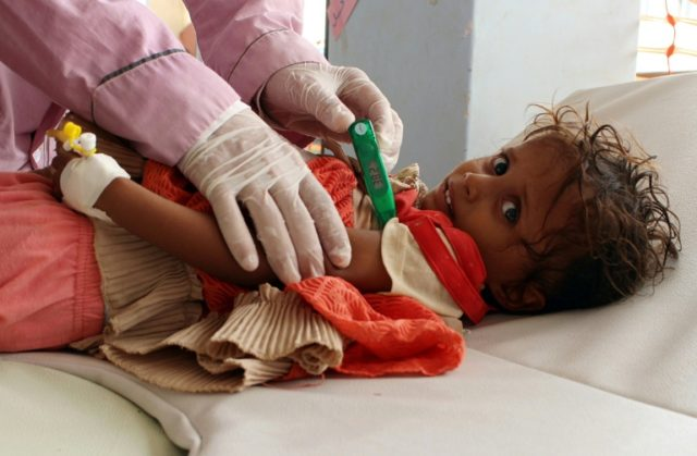 A child is checked for cholera at a makeshift hospital operated by Doctors Without Borders in the Abs area of Yemen on July 16, 2017