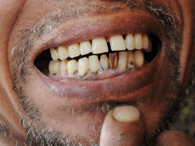 This photo taken on July 17, 2012 shows Reynaldo Elejorde, a former farmer and now a small-scale miner, showing a gold teeth made from gold particles he and his family were able to gather, which he considers as an investment, at a mining site in the village of Mt. Diwata, …