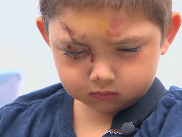 A 6-year-old boy in Olympia was assaulted after he says he stood up to a group of kids who were bullying his friend. (KOMO News)