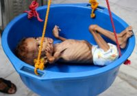 A two-year-old Yemeni boy suffering from malnutrition is weighed at a hospital on September 19, 2018