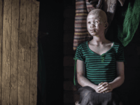 Catherine Amidu , a 12-year-old Malawian albino girl, sits in her home, in the traditional authority area of Nkole, Machinga district, on April 17, 2015. Six albinos have been killed in the poor southern African nation since December, according to the Association of Persons with Albinism in Malawi. AFP PHOTO …