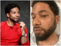 Chicago Police: Jussie Smollett Likely Scratched, Bruised His Own Face