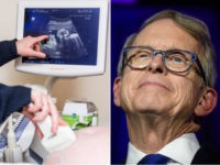 Ultrasound and Ohio Gov. Mike DeWine - collage.