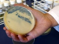 This Oct. 12, 2009 photo shows a petri dish with methicillin-resistant Staphylococcus aureus (MSRA) cultures at the Queen Elizabeth Hospital in King's Lynn, England.