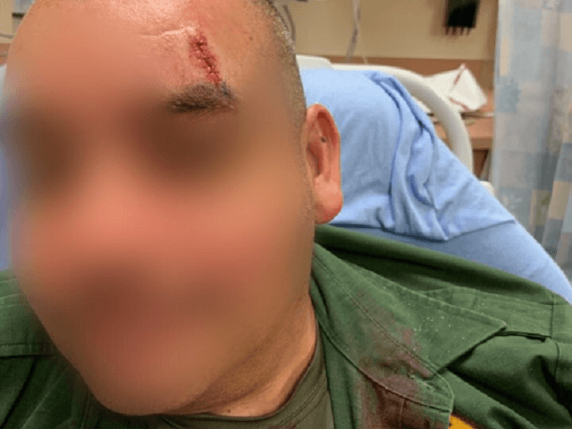 An El Centro Sector Border Patrol agent received treatment for a head laceration following being struck by a large rock thrown through a damaged border barrier. (Photo: U.S. Border Patrol/El Centro Sector)