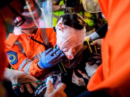 TOPSHOT - EDITORS NOTE: Graphic content / Medics look after a woman who received a facial injury during a standoff between protesters and police in Tsim Sha Tsui in Hong Kong on August 11, 2019, in the latest opposition to a planned extradition law that was quickly evolved into a …
