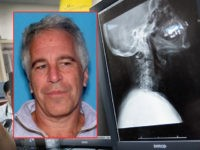 (INSET: Jeffrey Epstein mugshot) MIAMI, FL - APRIL 30: Dr. Daniel Velazquez, M.D. inspects an x-ray of a patient for a possible neck injury at the University of Miami Hospital's Emergency Department on April 30, 2012 in Miami, Florida. As people wait to hear from the United States Supreme Court …