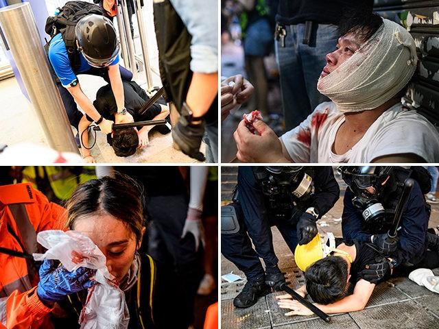 hong-kong-police-violence-getty