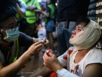 TOPSHOT - An injured man is attended to as he sits on the street after a clash during a protest in Tsuen Wan district of Hong Kong on August 5, 2019. - Hong Kong riot police clashed with pro-democracy protesters for a third straight day on August 5 as the …
