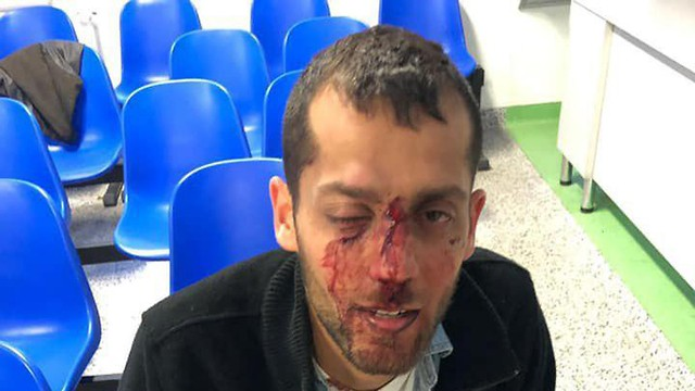 Yotam pictured after he was  attacked on Saturday in Warsaw (Barak Kashpizki/Facebook)