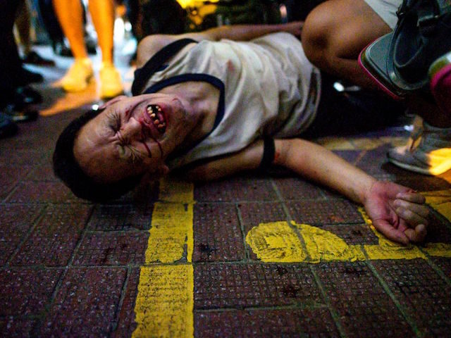 TOPSHOT - An unidentified man reacts after being beaten by a group of people after a protest in Causeway Bay district in Hong Kong on September 15, 2019. - Hong Kong riot police fired tear gas and water cannons at hardcore pro-democracy protesters hurling rocks and petrol bombs on September …