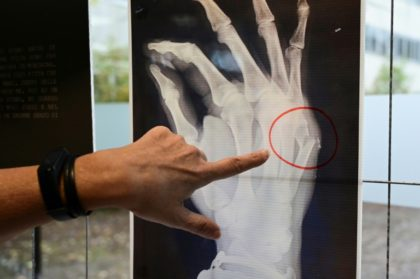 A Milan hospital is displaying X-rays from victims of domestic violence who have passed through the doors of the facility seeking help